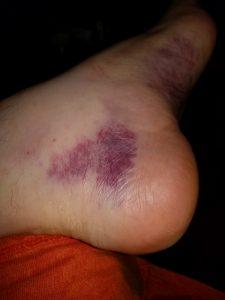 More bruising